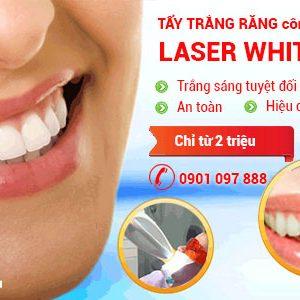 Tẩy trắng răng bằng công nghệ Laser White.