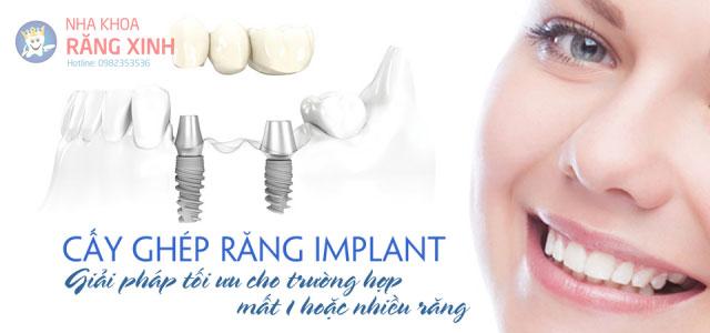 cay_implant.jpg