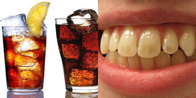 sức khỏe răng miệng