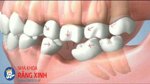 bệnh về răng
