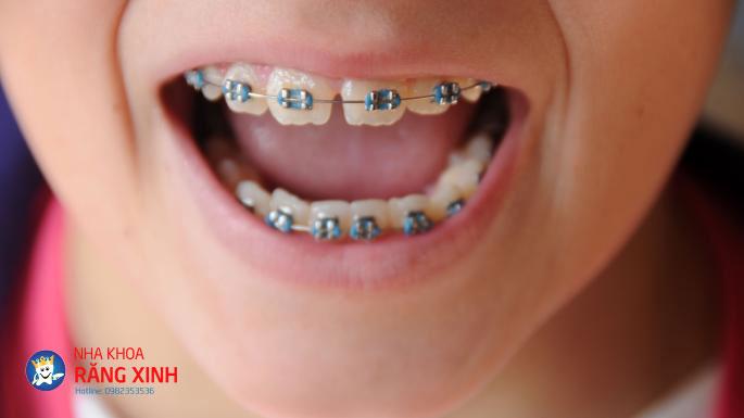 niềng răng sai khớp cắn