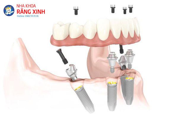 implant_all_on_4_grande.jpg