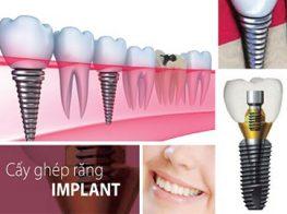 nha-khoa-nghe-an-cay-ghep-implant-37jjjqz2hm3on131mu2lmo.jpg