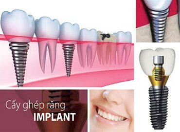 nha-khoa-nghe-an-cay-ghep-implant-37jjjqz2nvx3kccgbxwrgg.jpg