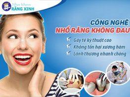 nha-khoa-nghe-an-nho-rang-khong-dau-37jjjpucwzazmld761ep6o.jpg