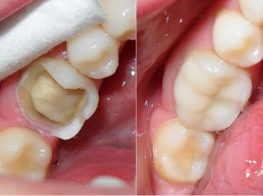 sâu-răng-37jjjpucwzazmld761ep6o.jpg